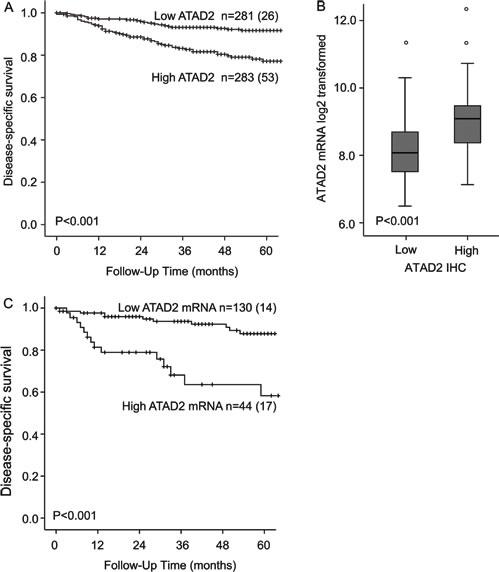 ATAD2 predicts poor prognosis in endometrial cancer.
