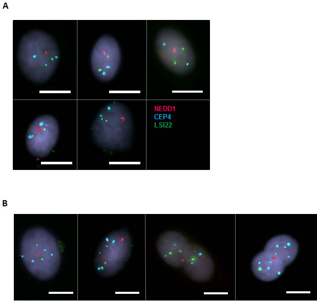 Cells showing 4 NEDD1 signals are either diploid or polyploid.