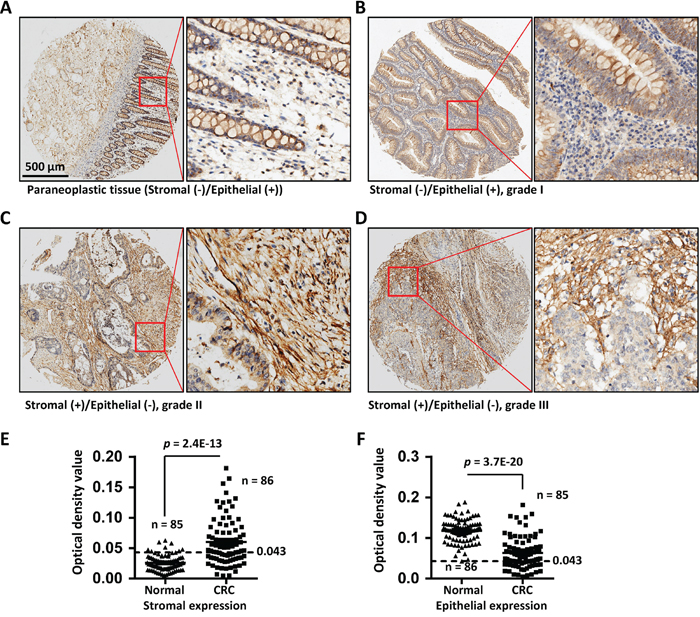 COL6A3 protein was upregulated in colorectal cancer stroma revealed by IHC analysis of a tissue microarray.