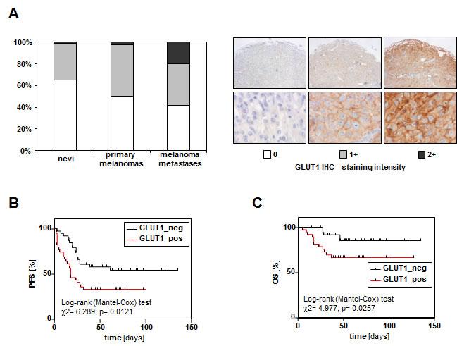 GLUT1 expression in human nevi, primary malignant melanomas and melanoma metastases.