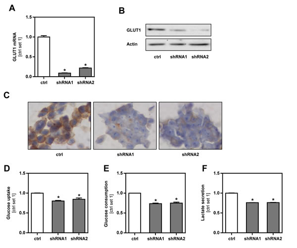 Inhibition of GLUT1 expression in B16 melanoma cells.