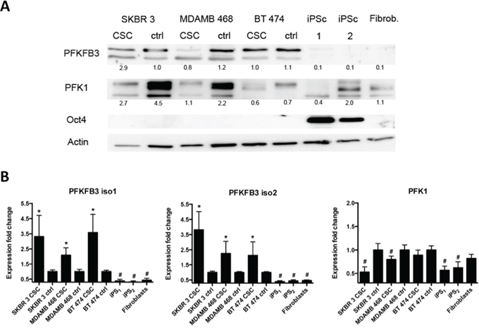 Endogenous PFKFB3 and PKF1 expression in asynchronized cancer cells, CSC and iPS cells.