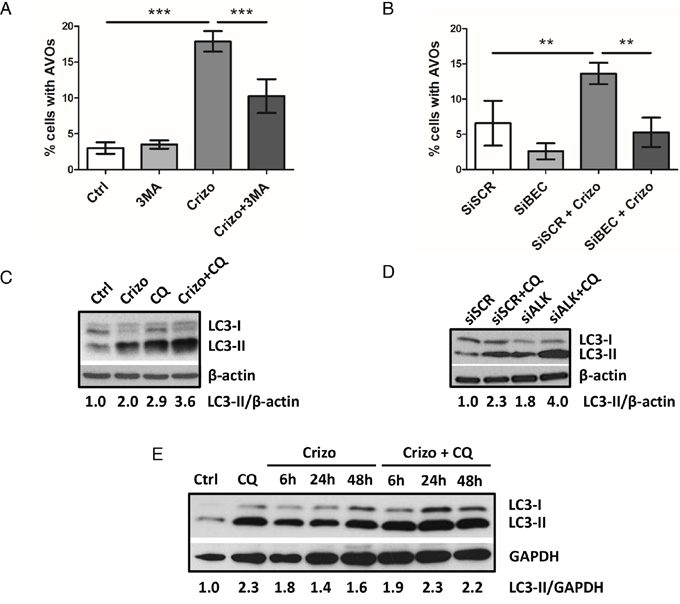 ALK inactivation increases autophagic flux in the Karpas-299 ALCL cell line.