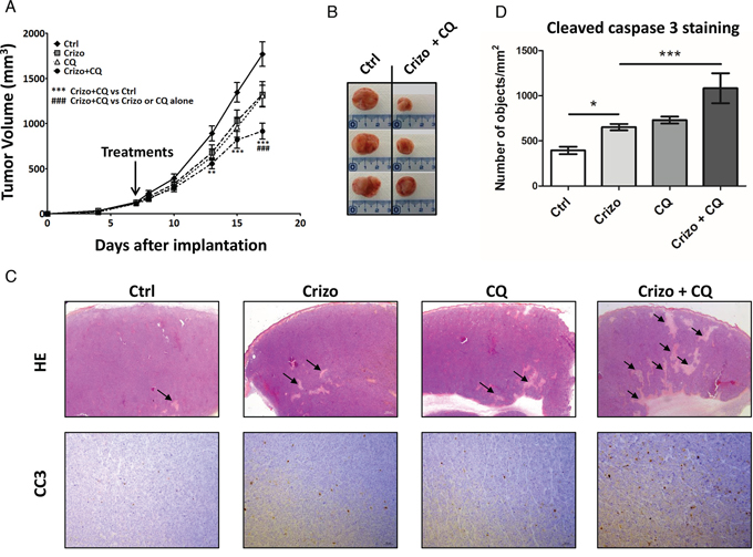 A combination of a low dose of crizotinib plus chloroquine inhibits Karpas-299 xenograft growth in NOD/SCID mice.
