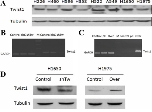 Twist1 expression in NSCLC cell lines and Twist1 modulation in H1650 and H1975.
