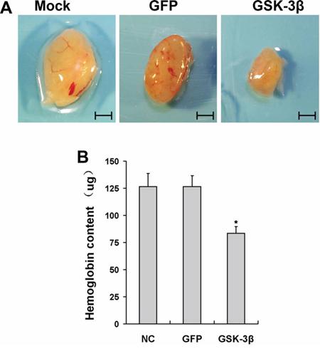 Overexpression of GSK-3β inhibited tumor angiogenesis in vivo.