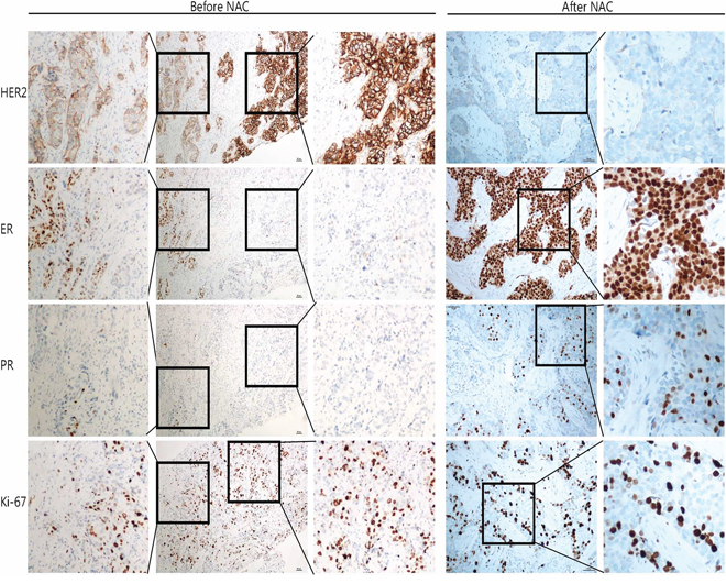 IHC of case QL25 demonstrated tumor heterogeneity and altered biomarker expression patterns after NAC treatment.