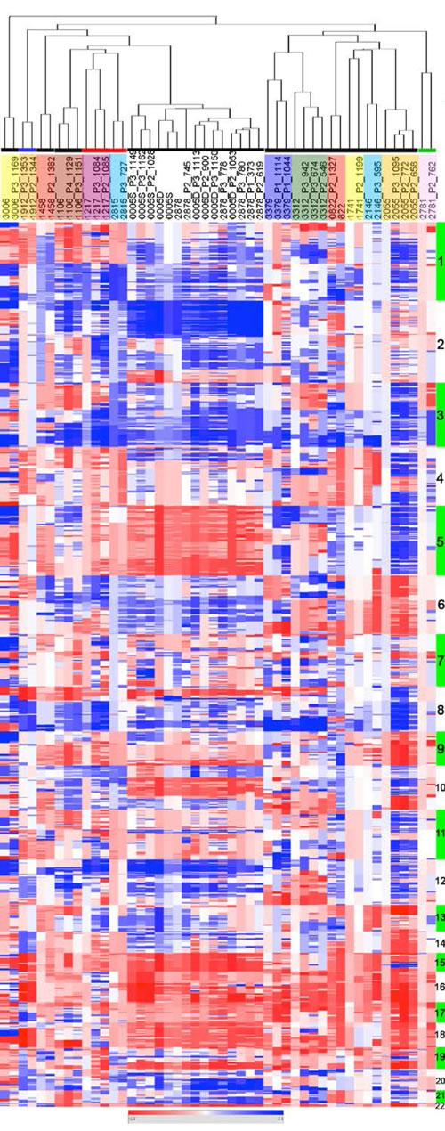 EOC of origin and corresponding PDXs show similar CNC profiles.