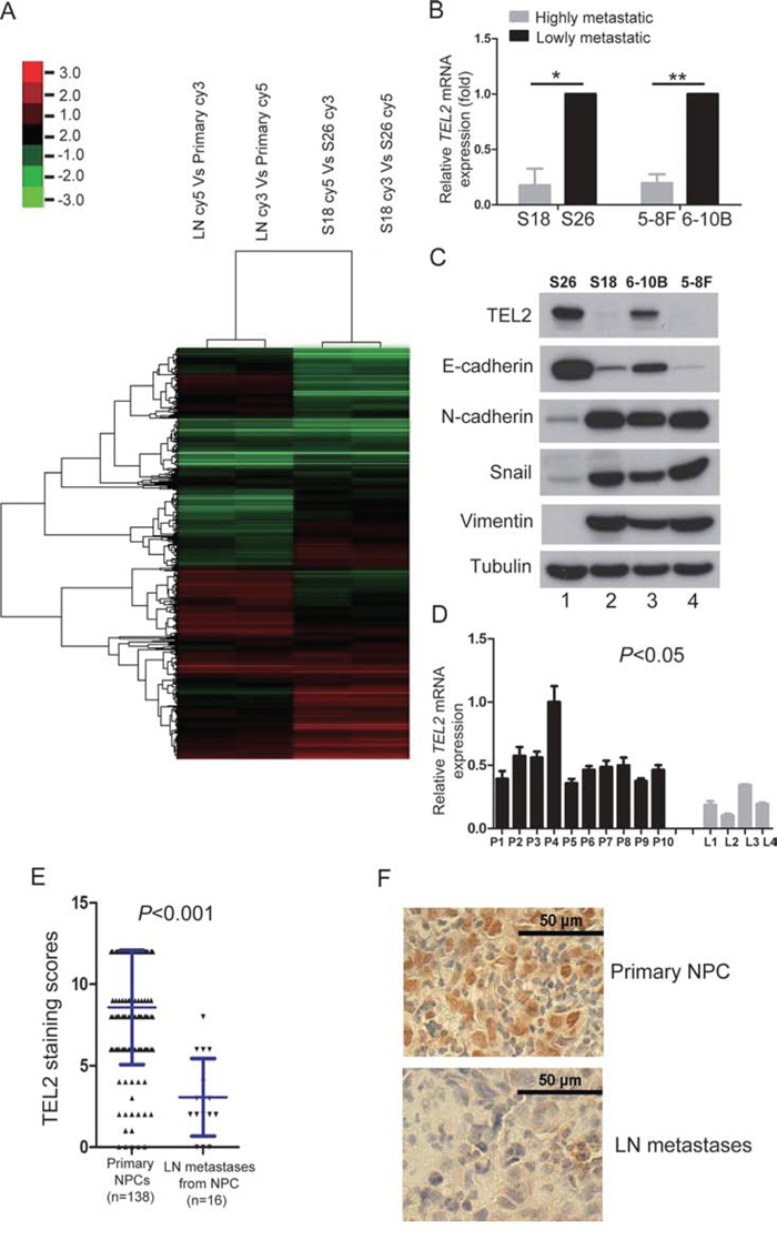 TEL2 is down-regulated in the metastatic cells and tissues of NPC.