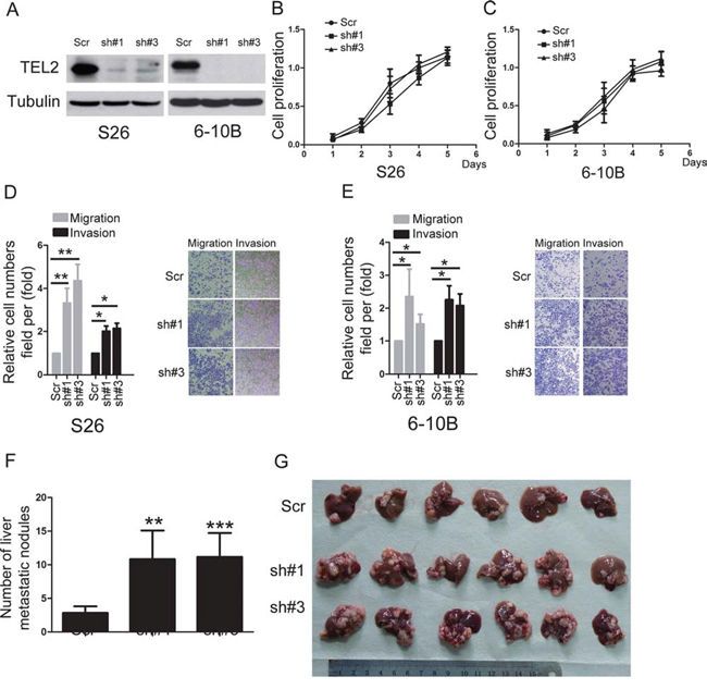 knockdown of TEL2 promotes NPC metastasis.