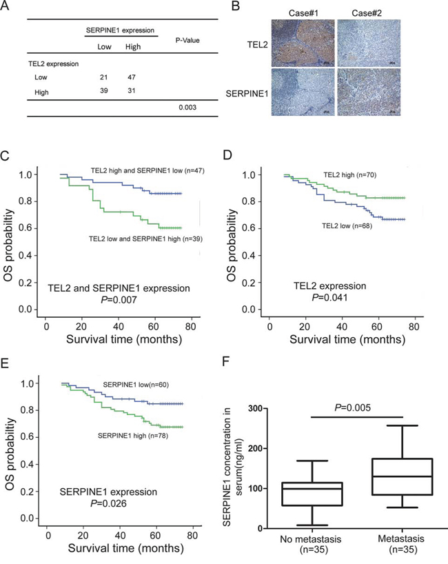 The clinical significance of the TEL2 / SERPINE1 axis in patients with NPC.