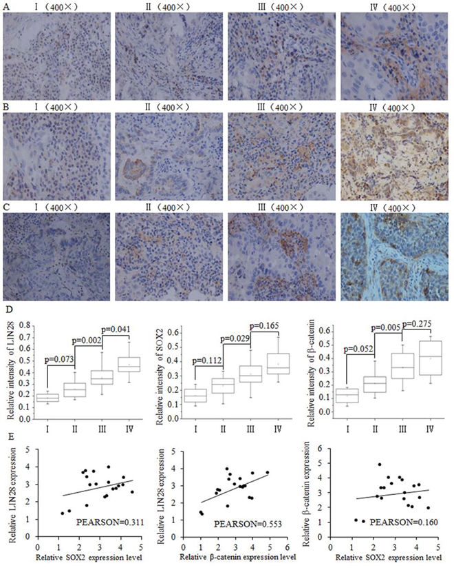 The positive correlation between SOX2/β-catenin and LIN28 and their clinical value in evaluating prognosis of patients with breast cancer.