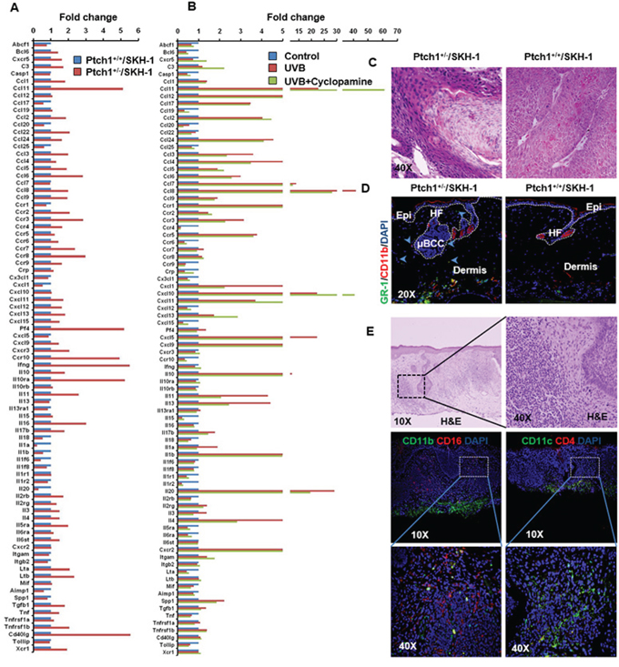 Inflammatory responses are augmented in the skin of Ptch1+/−/SKH-1 mice as compared to Ptch1+/+/SKH-1 mice and treatment with the SMO inhibitor cyclopamine attenuates these inflammatory responses.