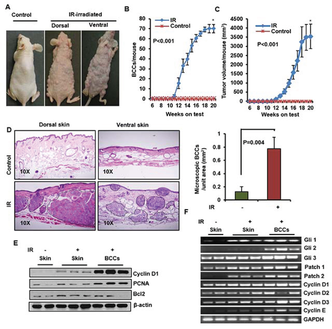 Ionizing radiation (IR) induce multiple BCCs in Ptch1+/−/SKH-1 mice.