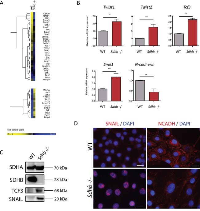 Molecular characterization of the EMT process in Sdhb−/− imCC.