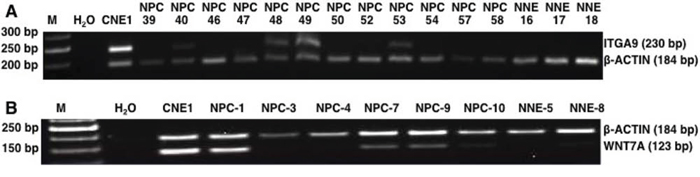 MSP analysis of NPC biopsies and non-cancerous control samples from Morocco.