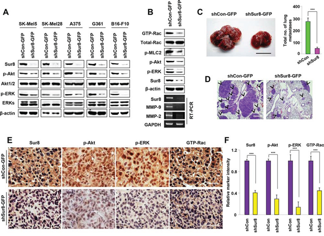 Effects of Sur8 knockdown on ERKs and Akt phosphorylation, Rac activation, MMPs expression, and lung metastasis in B16-F10 melanoma cells.