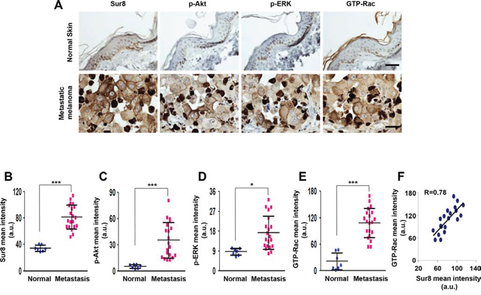 The expression of Sur8, p-Akt, p-ERK, and GTP-Rac in human metastatic melanoma.