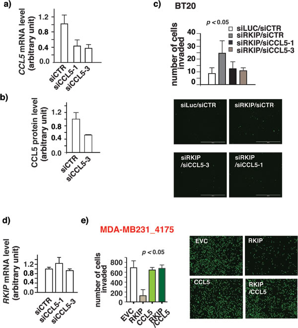 RKIP inhibits breast cancer cell invasion by decreasing CCL5 expression.