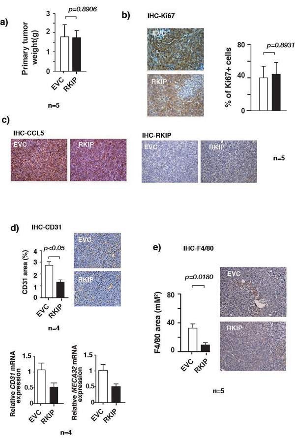 RKIP inhibits angiogenesis and infiltration of macrophages in primary tumors. (a)