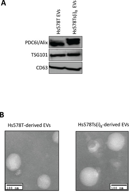 Confirmation of successful isolation of nano-sized extracellular vesicles (EVs) from Hs578T and Hs578Ts(i)8 conditioned medium.