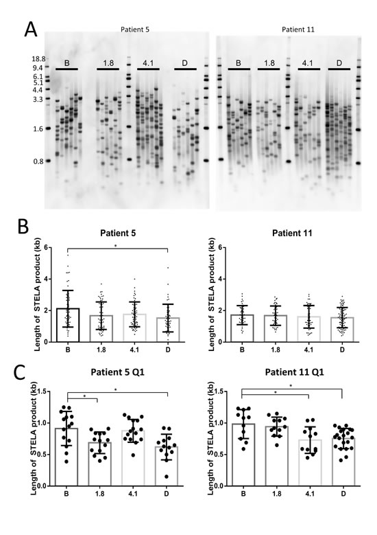 Perifosine induced shortening of the shortest telomeres in continuously treated CLL tumor samples.