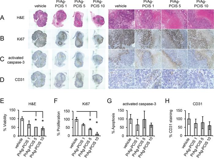 PrAg-PCIS toxin treatment increases tumor necrosis and reduces tumor cell proliferation.