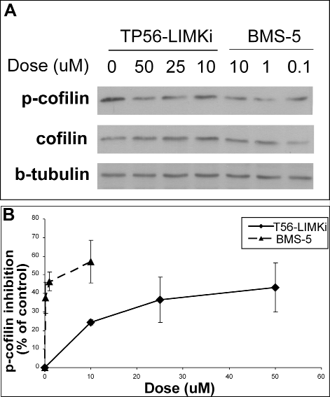 High levels of p-cofilin in NF1