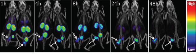 [111In]XYIMSR-01 enabled specific imaging of CAIX-expressing SK-RC-52 tumors.