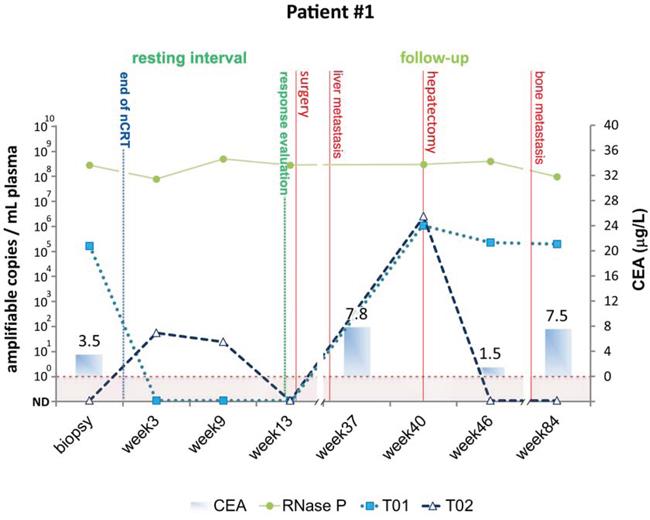 Detection of tumor-specific chromosomal rearrangements in liquid biopsies from Patient #1.