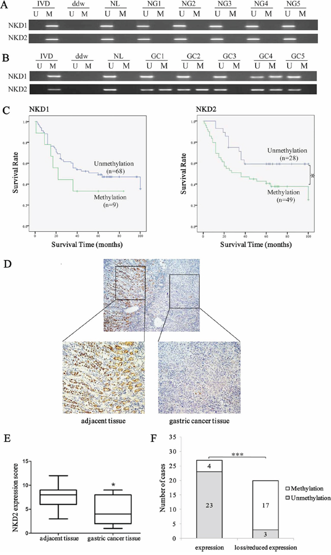 Methylation and expression status of NKD2 in primary gastric cancer and their prognostic value.