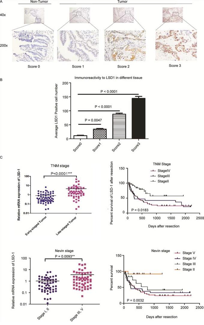LSD1 expression correlates with GBC progression.