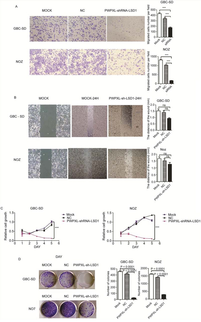 Knock-down of LSD1 inhibit the invasion and metastasis in GBC cell lines.
