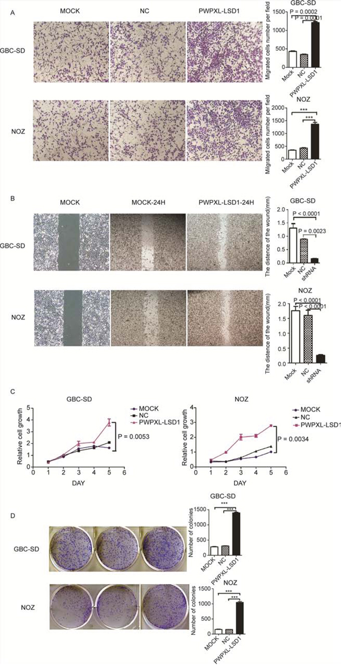 Overexpression of LSD1 promotes the invasion and metastasis in GBC cell lines.