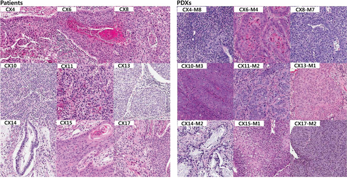 Histologic comparison between the patients and their PDX tumors.