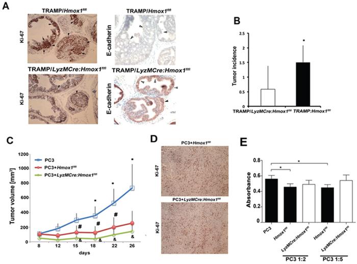 TAM-derived HO-1 modulates prostate cancer progression.