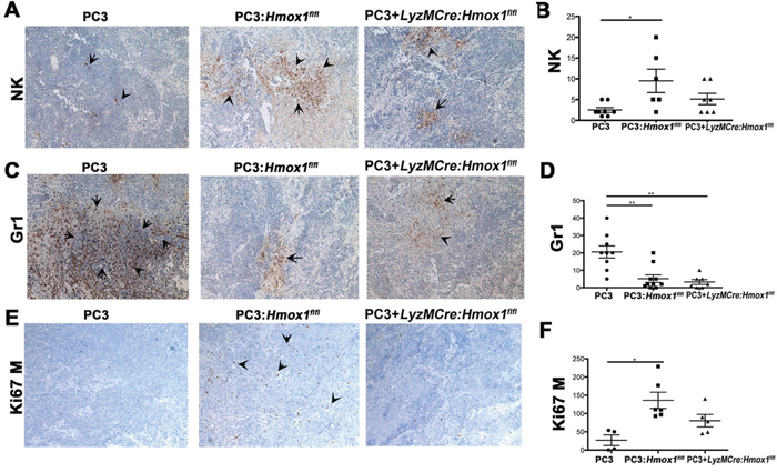 Presence of HO-1-postitive macrophages in the tumor microenvironment modulates infiltration of Gr1+ and NK cells.