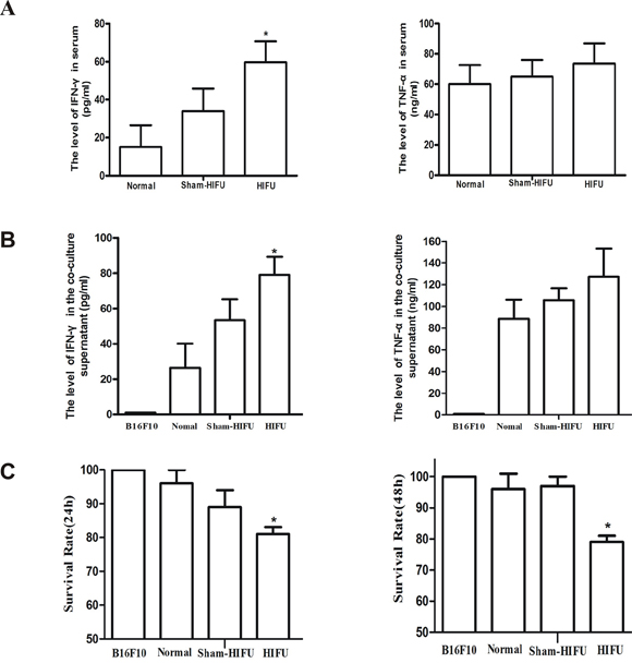 HIFU treatment enhanced anti-tumor immune response.