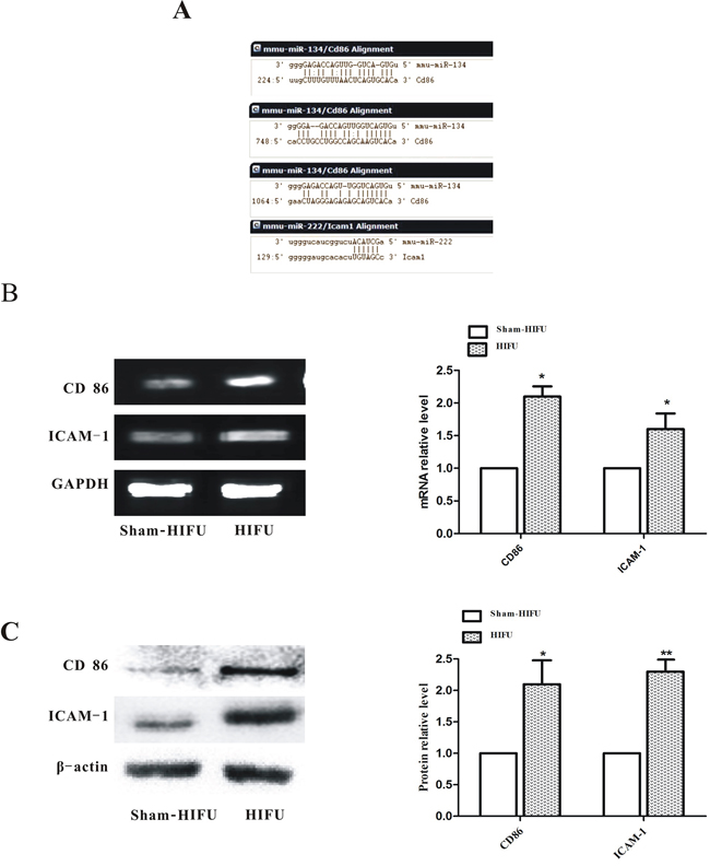 HIFU treatment increased the levels of CD86 and ICAM-1 in tumor tissue.
