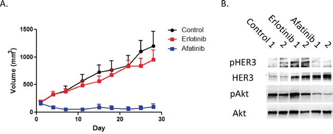 Heregulin-overexpressing NSCLC cell xenografts are resistant to erlotinib, but sensitive to afatinib.
