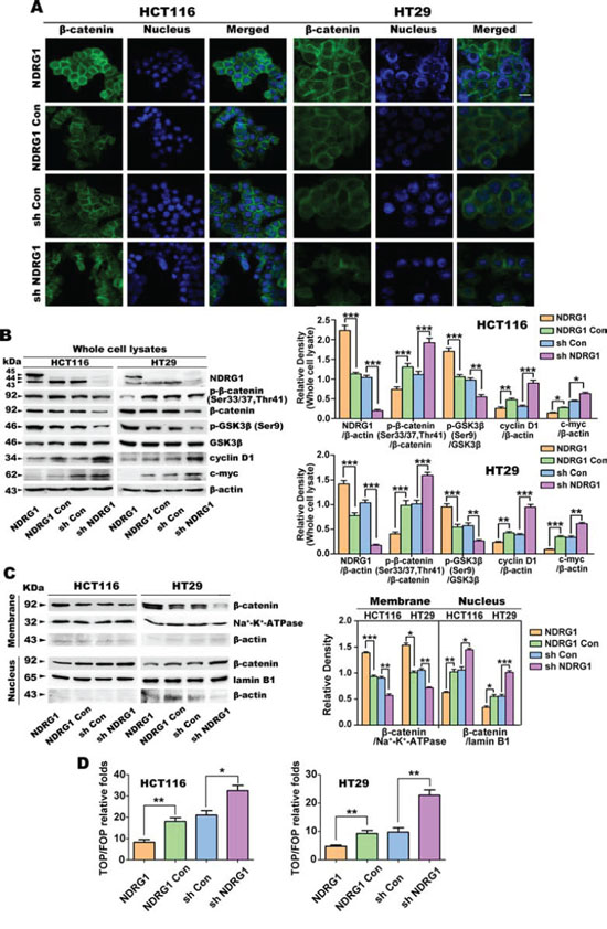 Over-expression of NDRG1 down-regulates nuclear β-catenin expression in HCT116 and HT29 cells.