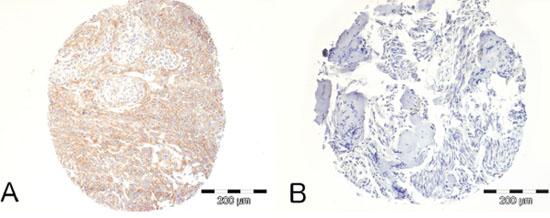 Immunohistochemical analysis of PDGFR-B expression in human meningiomas.