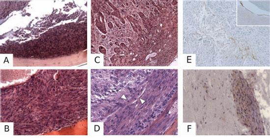 Pathological characterization of PDGF-induced meningiomas.