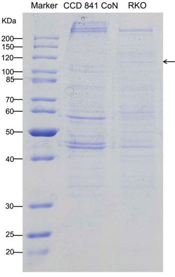 Detection and identification of tumor-specific hTERT promoter-binding proteins.