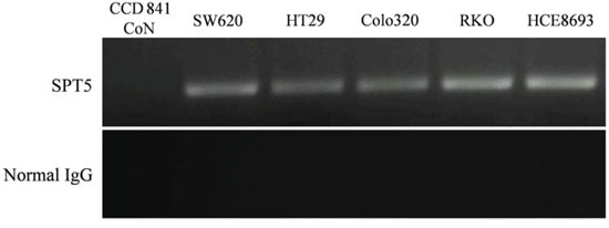 Validation of SPT5 as a tumor-specific hTERT promoter-binding protein.