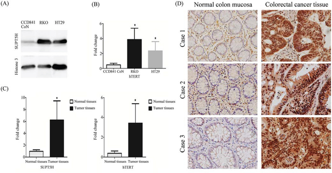 Expression of SUPT5H mRNA and protein levels and hTERT mRNA in human colorectal cancer.