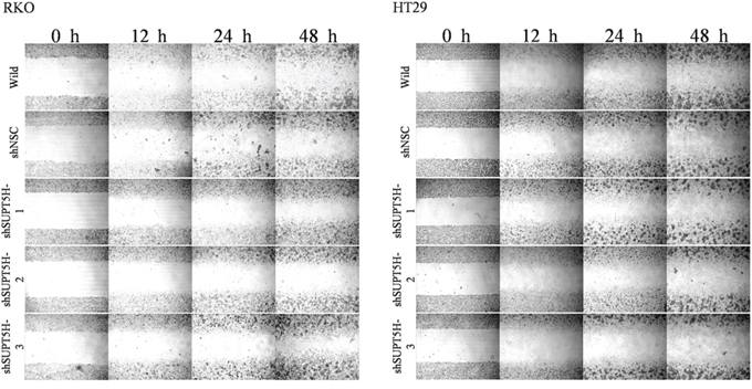 Inhibition of SUPT5H expression suppressed cancer cell migration.