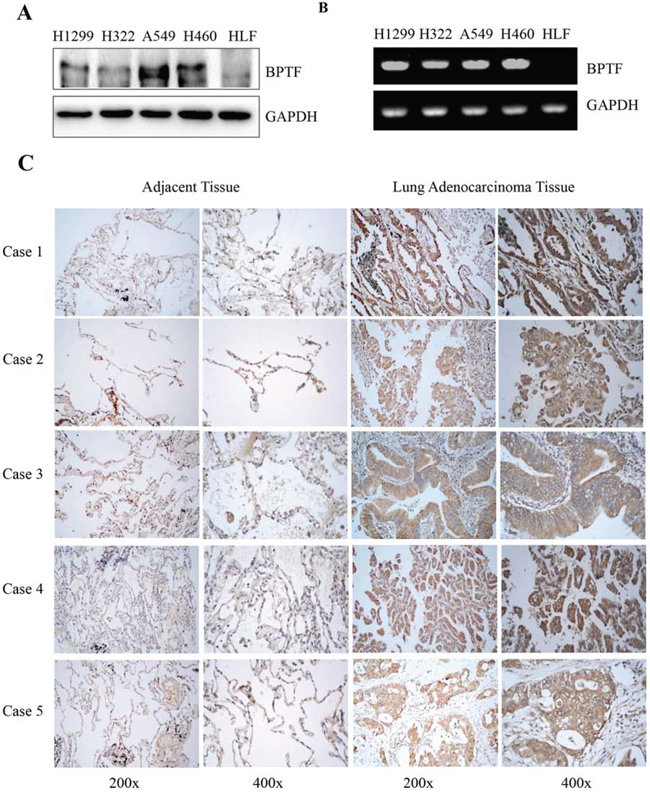 BPTF was overexpressed in NSCLC cell lines and lung adenocarcinoma tissues.