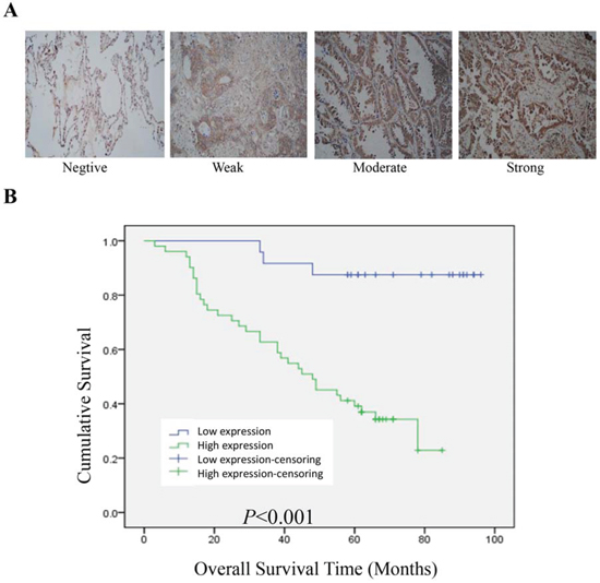 BPTF predicted a poor prognosis in lung adenocarcinoma.