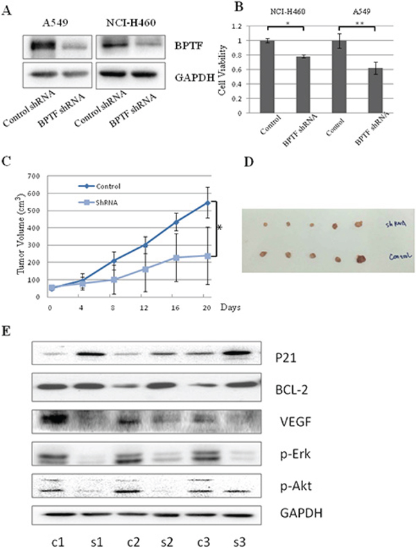 Knockdown of BPTF by shRNA inhibited lung cancer cell growth in vitro and in vivo.